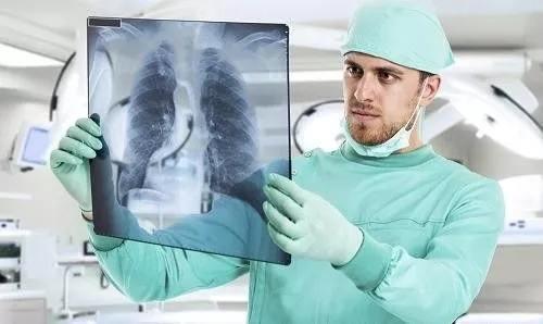哪些人要注意肺功能检查