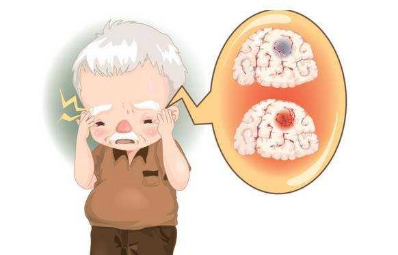 脑血管疾病可以引起视觉障碍