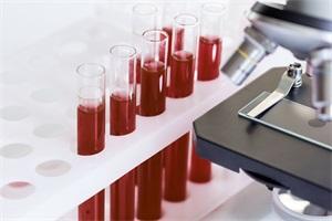 血常规检查的作用和结果分析