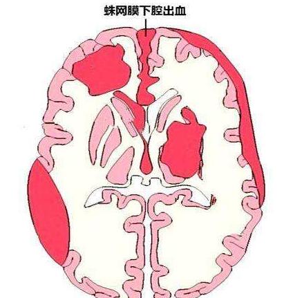 什么情况下可能引发蛛网膜下腔出血